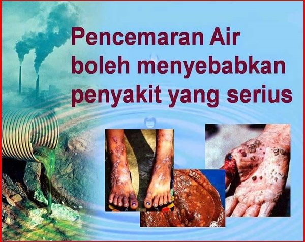 penyakit-akibat-pencemaran-dlm-air2